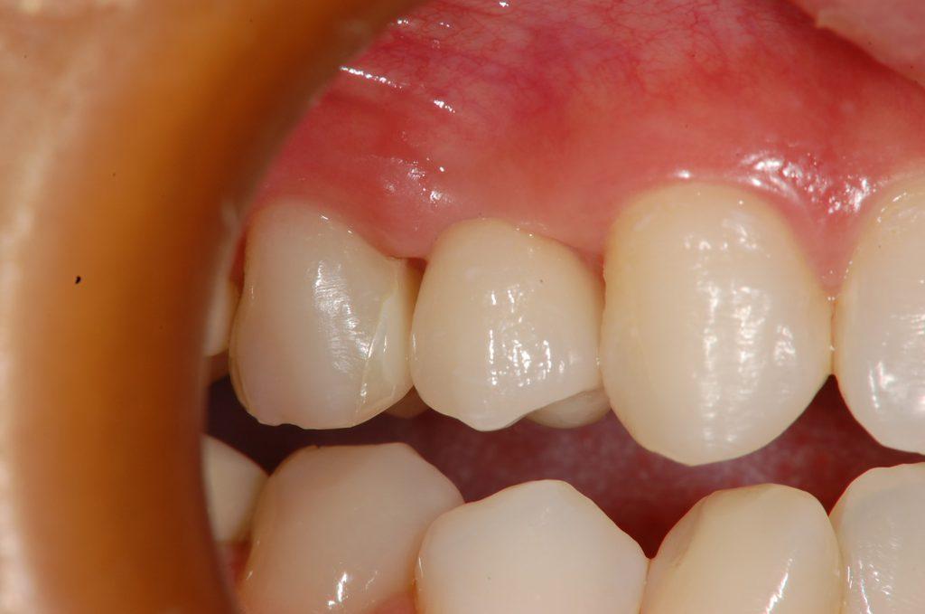 恵比寿デンタルクリニック東京|ソケットリフトによるインプラント埋入|治療後ジルコニアセラミックの人工歯装着後の画像