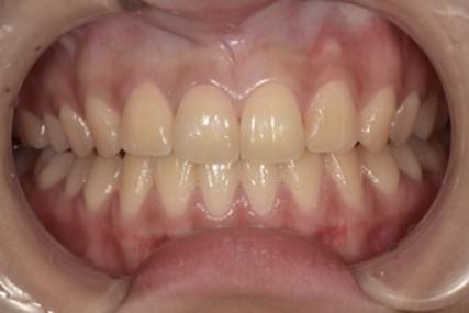 ジルコニアセラミッククラウンによる前歯の審美回復の症例|セット後の画像|恵比寿の歯医者|恵比寿デンタルクリニック東京