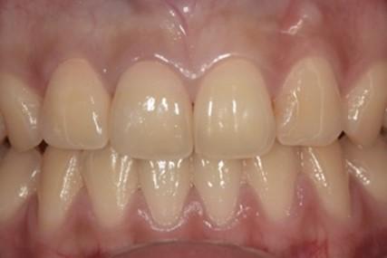 ジルコニアセラミッククラウンによる前歯の審美回復の症例|セット後の画像アップ。治療した歯が分からないくらい自然な仕上がり|恵比寿の歯医者|恵比寿デンタルクリニック東京