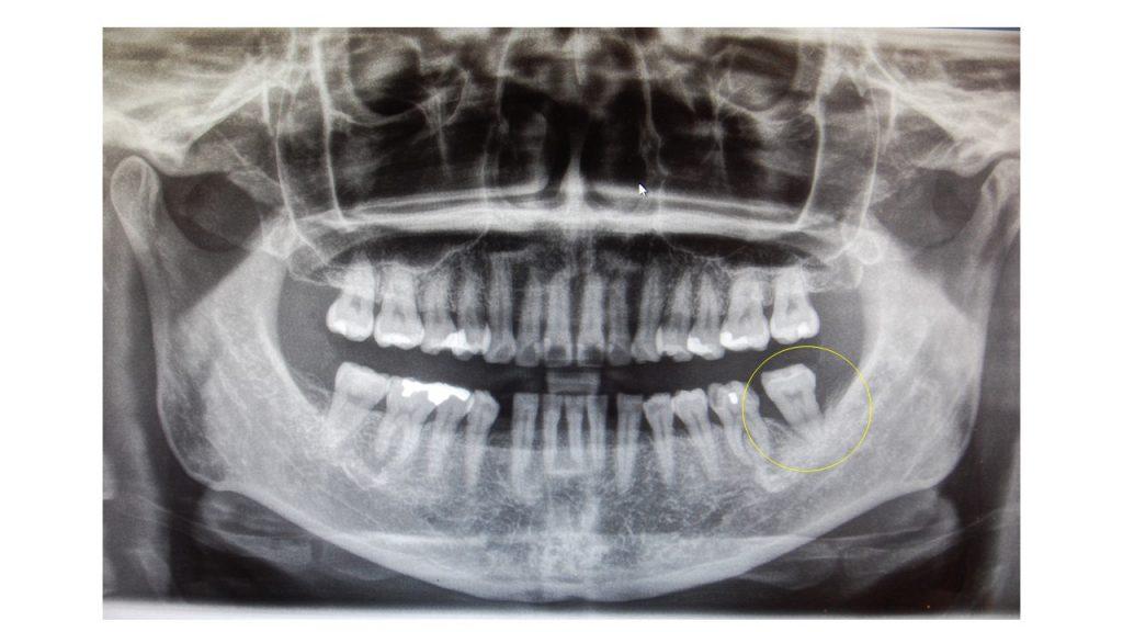 重度の歯周炎により動揺する歯の抜歯を回避。エムドゲインを使用した歯槽骨再生治療の症例レントゲン画像|恵比寿の歯医者|恵比寿デンタルクリニック東京