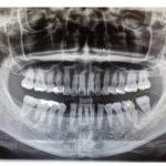 【症例】重度の歯周炎により動揺する歯の抜歯を回避。エムドゲインを使用した歯槽骨再生治療