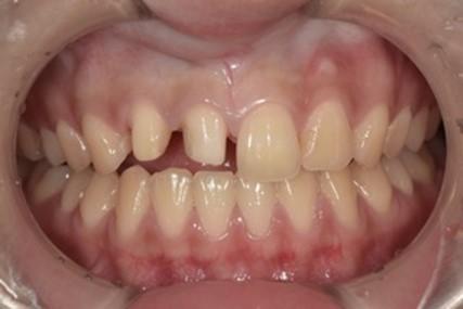 ジルコニアセラミッククラウンによる前歯の審美回復の症例|セット前の画像|恵比寿の歯医者|恵比寿デンタルクリニック東京