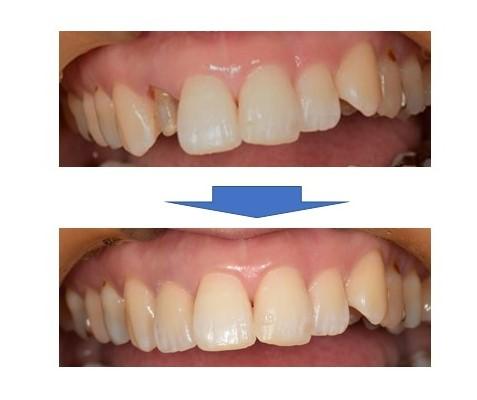 【症例】劣化したレジンをジルコニアセラミッククラウンへ。天然歯のような美しさの再現と歯の寿命への配慮 治療前治療後比較口腔内画像 恵比寿の歯医者 恵比寿デンタルクリニック東京