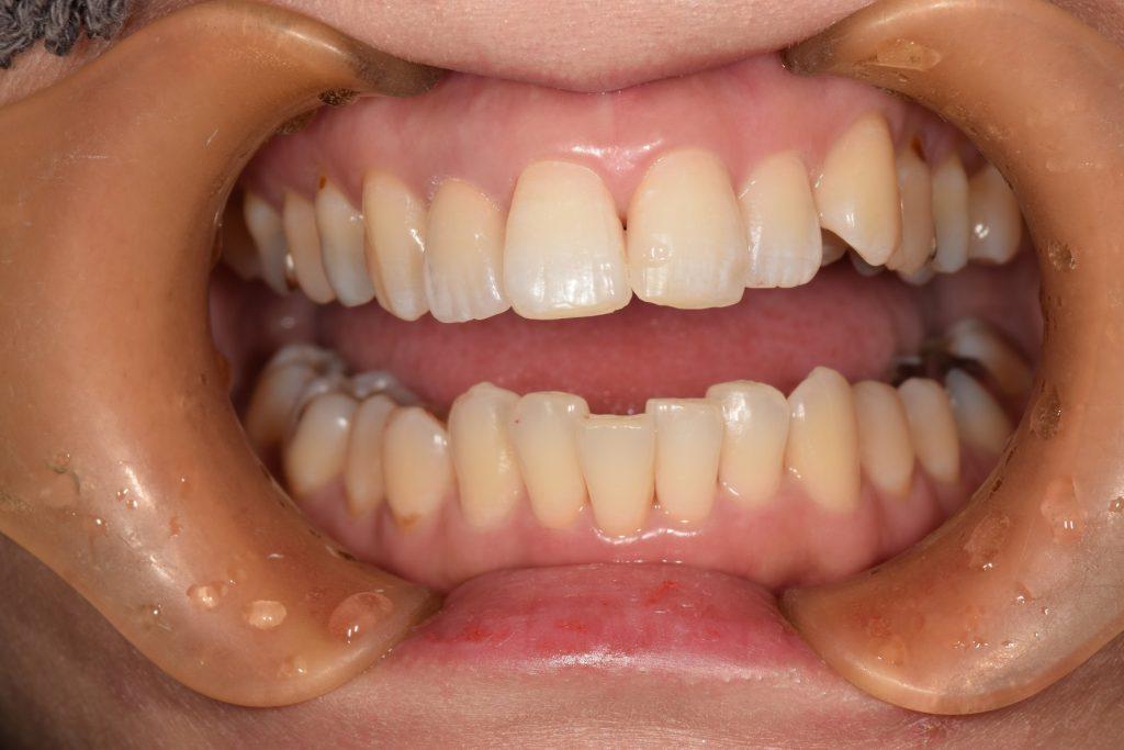 【症例】劣化したレジンをジルコニアセラミッククラウンへ。天然歯のような美しさの再現と歯の寿命への配慮 ジルコニアセラミッククラウンセット後の口腔内画像 恵比寿の歯医者 恵比寿デンタルクリニック東京