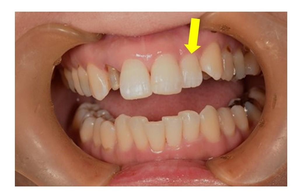 【症例】劣化したレジンをジルコニアセラミッククラウンへ。天然歯のような美しさの再現と歯の寿命への配慮 治療する歯の反対側の同名歯の色を指す口腔内画像 恵比寿の歯医者 恵比寿デンタルクリニック東京