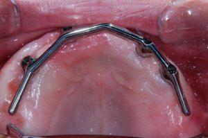 インプラントによる入れ歯の固定 症例 バーアタッチメント装着時の口腔内写真2  恵比寿の歯医者 恵比寿デンタルクリニック東京
