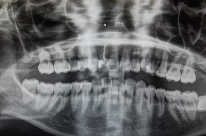 【症例】劣化したレジンをジルコニアセラミッククラウンへ。天然歯のような美しさの再現と歯の寿命への配慮 治療前のレントゲン画像 恵比寿の歯医者 恵比寿デンタルクリニック東京