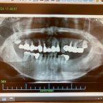 インプラントによる入れ歯の固定 症例 治療前のレントゲン画像 |恵比寿の歯医者|恵比寿デンタルクリニック東京