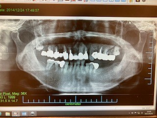 インプラントによる入れ歯の固定 症例 治療前のレントゲン画像  恵比寿の歯医者 恵比寿デンタルクリニック東京