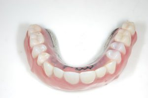 インプラントによる入れ歯の固定 症例 バーアタッチメントによる固定が可能なため最小限の大きさで作成した入れ歯  恵比寿の歯医者 恵比寿デンタルクリニック東京