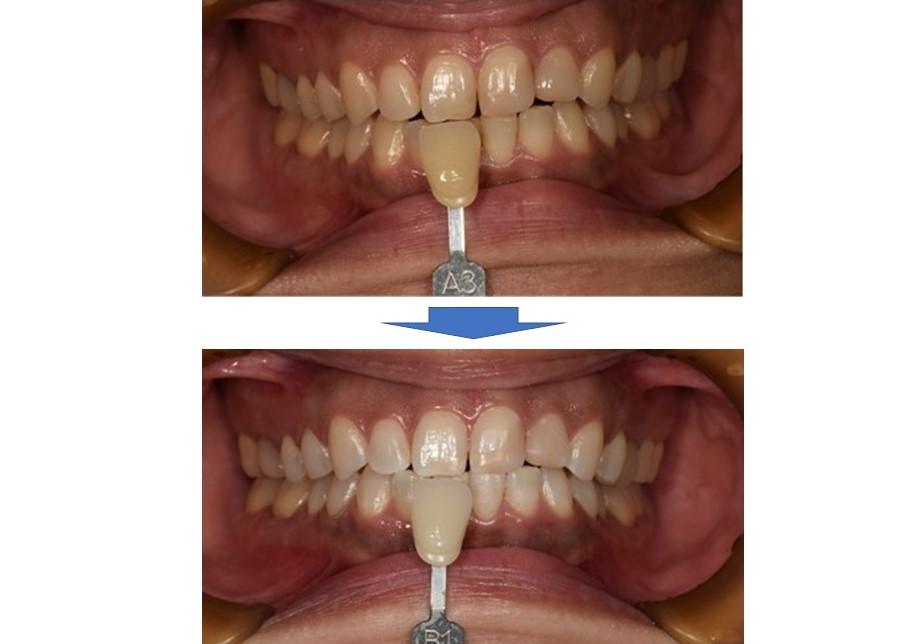 【症例】レジンの詰め物がある方のオフィスホワイトニング|恵比寿の歯医者 恵比寿デンタルクリニック東京の症例|ビフォアアフター画像