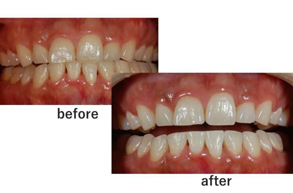 【症例】ティオンのホワイトニングで美しく白い歯に(30代女性)|恵比寿の歯医者 恵比寿デンタルクリニック東京の症例|ホワイトニングのビフォアアフター画像