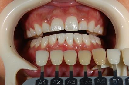 【症例】ティオンのホワイトニングで美しく白い歯に(30代女性)|恵比寿の歯医者 恵比寿デンタルクリニック東京の症例|ホワイトニング2回終了時歯の色を確認している画像