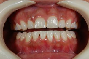 【症例】ティオンのホワイトニングで美しく白い歯に(30代女性)|恵比寿の歯医者 恵比寿デンタルクリニック東京の症例|ホワイトニング2回終了時画像