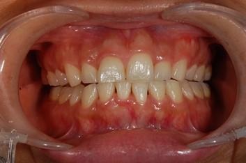 【症例】ティオンのホワイトニングで美しく白い歯に(30代女性)|恵比寿の歯医者 恵比寿デンタルクリニック東京の症例|ホワイトニング前の画像