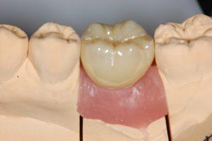 【症例】インプラント上部構造にペクトンアバットメントを用いた残存歯にやさしいインプラント治療 ペクトンアバットメントにジルコニアクラウンセット 恵比寿の歯医者 恵比寿デンタルクリニック東京