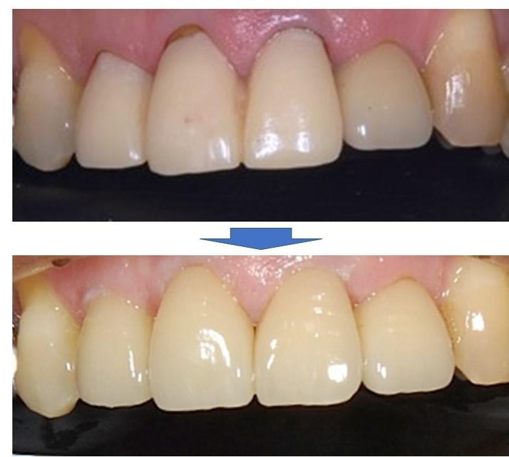 【症例】古くなった前歯の被せ物の下で進行した虫歯の処置とジルコニアクラウンによるやり替え|治療前治療後比較画像|恵比寿の歯医者 恵比寿デンタルクリニック東京