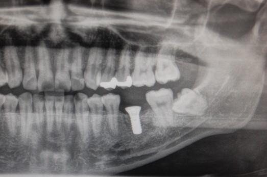 【症例】インプラント上部構造にペクトンアバットメントを用いた残存歯にやさしいインプラント治療 ペクトンアバットメントセット時 恵比寿の歯医者 恵比寿デンタルクリニック東京